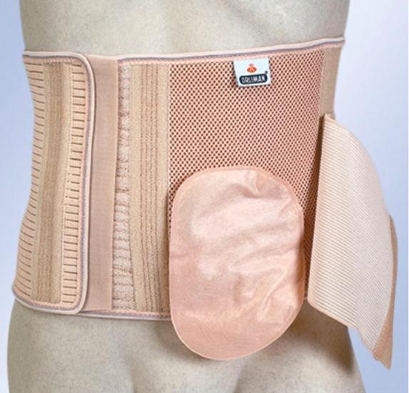steunband-stoma-buik